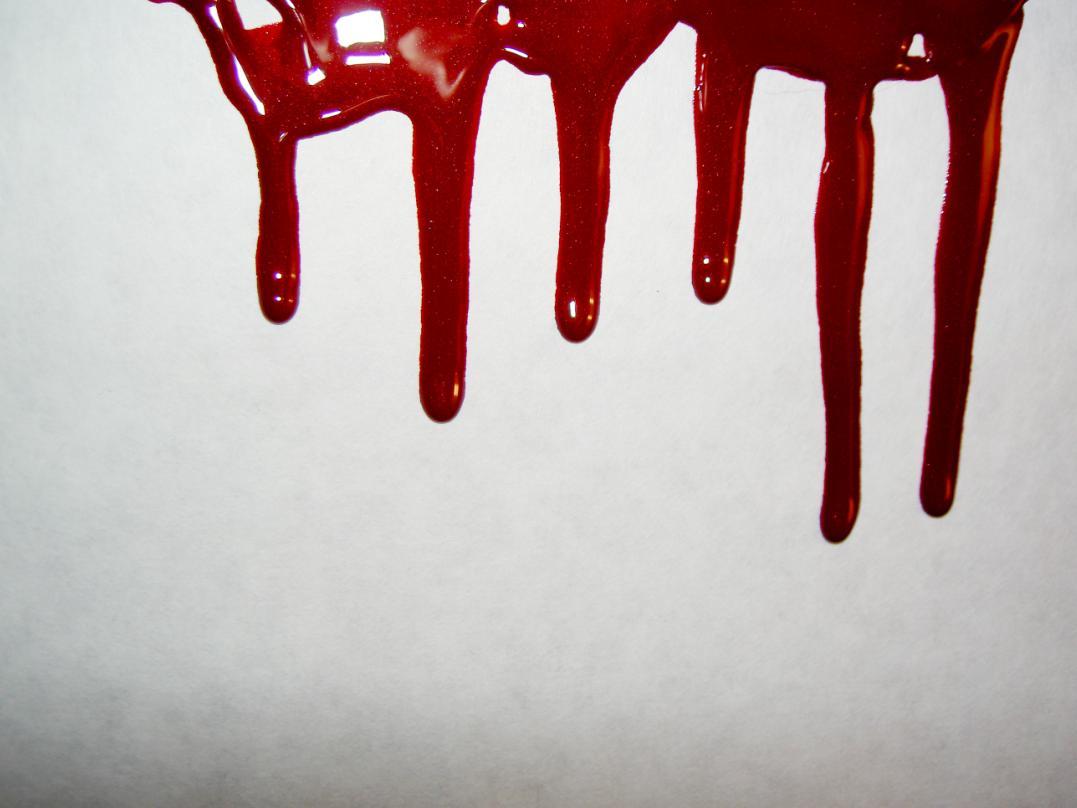 К чему снятся свои руки в крови